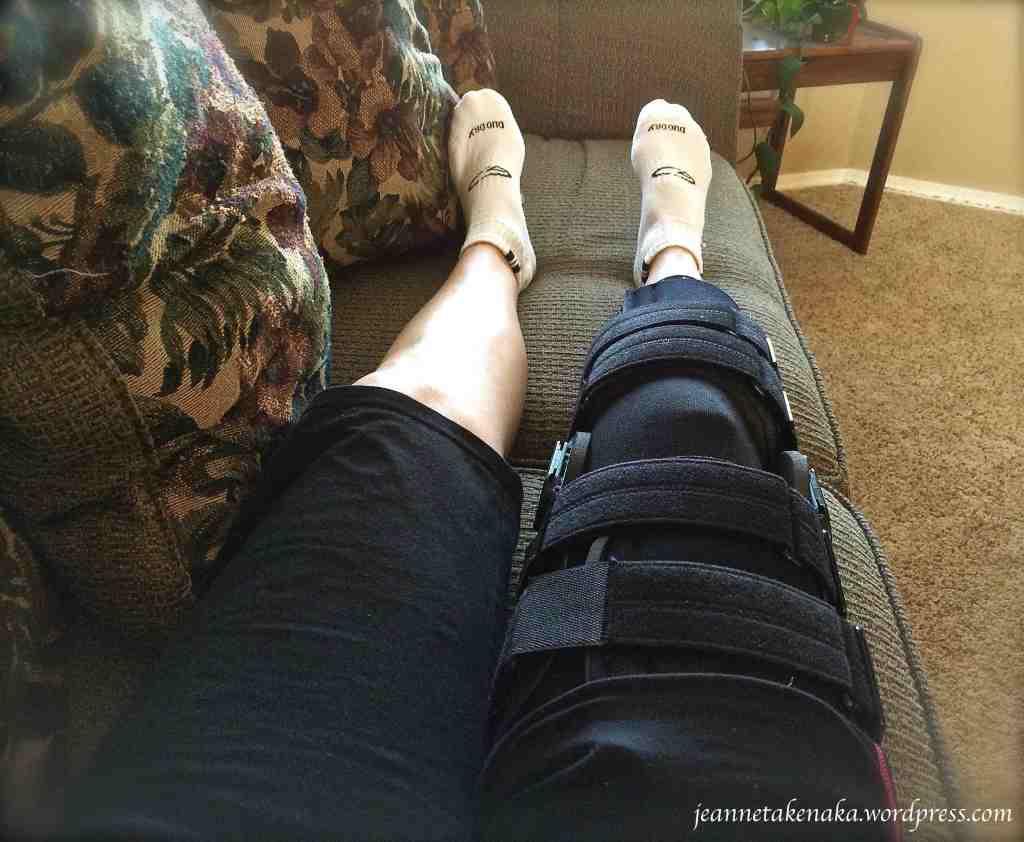 Braced leg